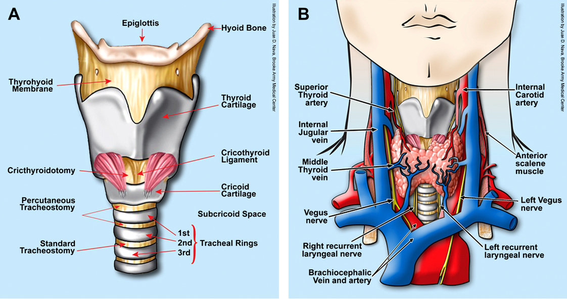 Figure 1 From Surgical Tracheotomy Semantic Scholar