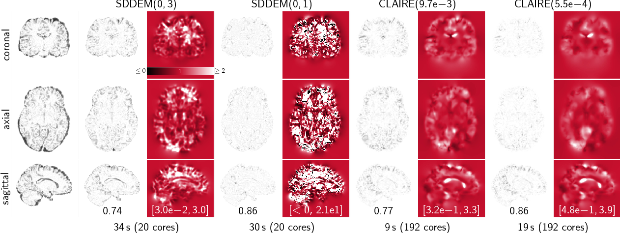 Figure 2 for CLAIRE: A distributed-memory solver for constrained large deformation diffeomorphic image registration