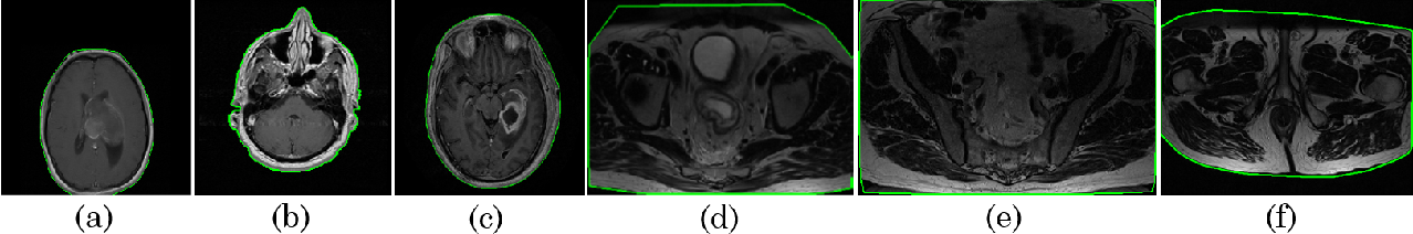Figure 4 for MRQy: An Open-Source Tool for Quality Control of MR Imaging Data