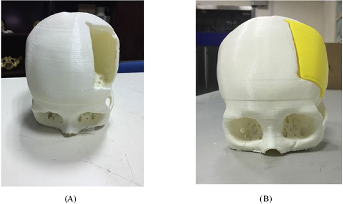 Figure 2 for Computer-aided implant design for the restoration of cranial defects