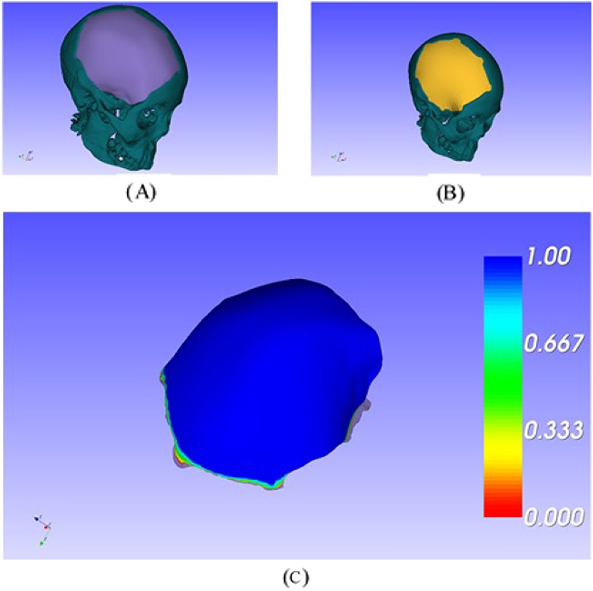 Figure 3 for Computer-aided implant design for the restoration of cranial defects