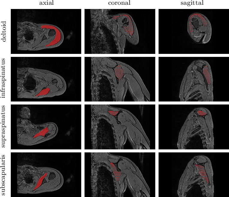 Figure 1 for Healthy versus pathological learning transferability in shoulder muscle MRI segmentation using deep convolutional encoder-decoders