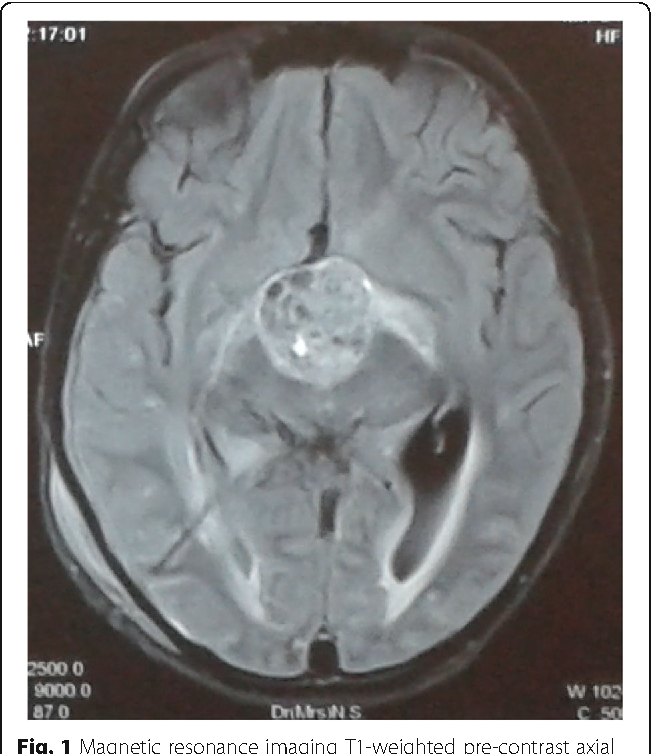 Fig. 1 Magnetic resonance imaging T1-weighted pre-contrast axial image showing suprasellar mass suggestive of craniopharyngioma
