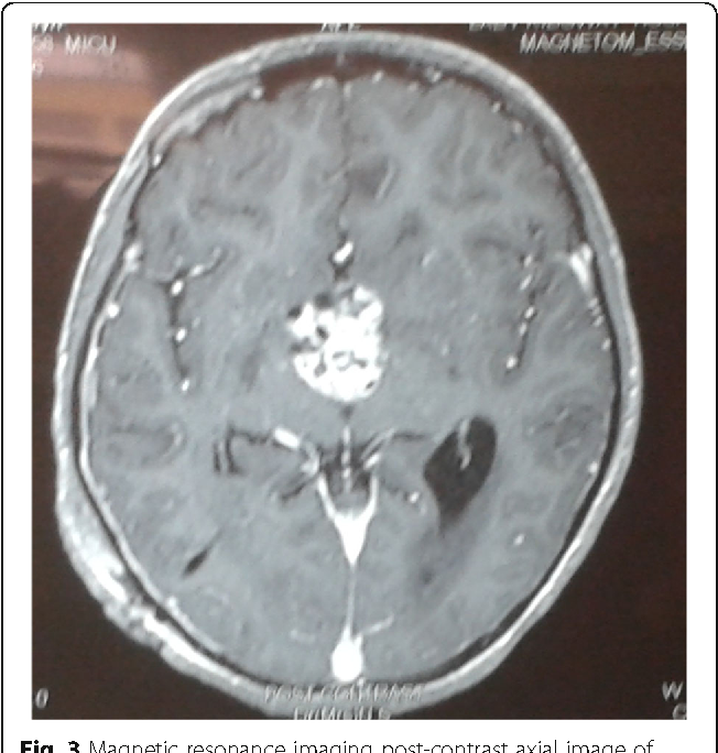 Fig. 3 Magnetic resonance imaging post-contrast axial image of the lesion