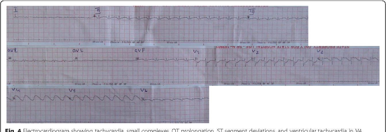 Fig. 4 Electrocardiogram showing tachycardia, small complexes, QT prolongation, ST segment deviations, and ventricular tachycardia in V4 and V5