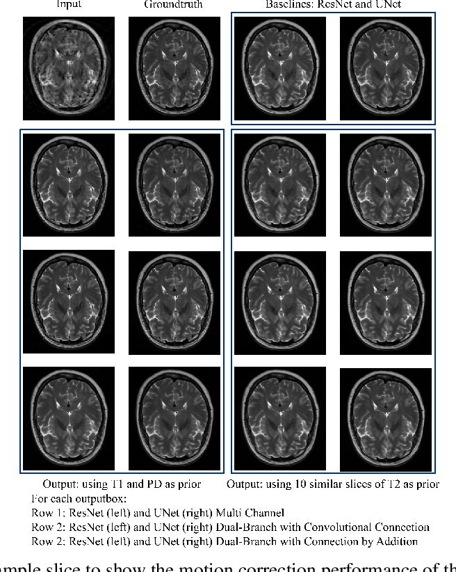 Figure 2 for Retrospective Motion Correction of MR Images using Prior-Assisted Deep Learning