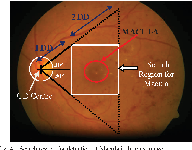 an automated imaging algorithm for macula detection in fundus images