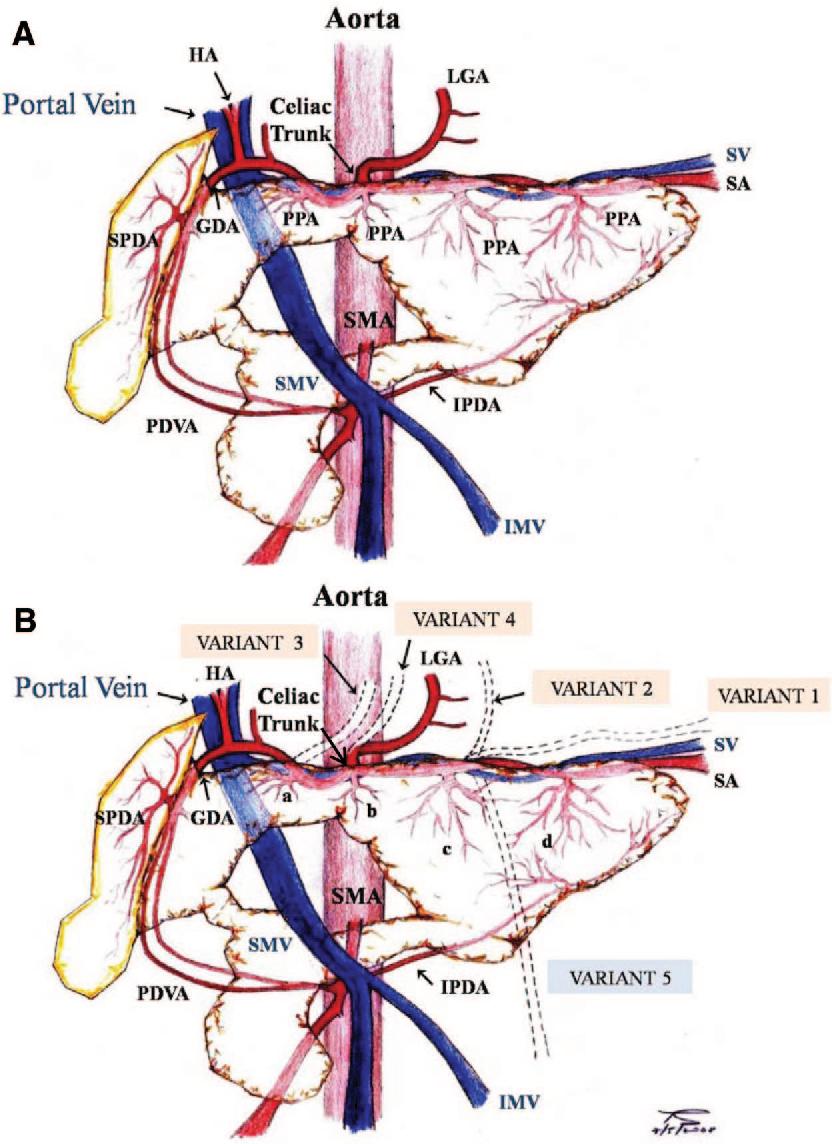 Pig pancreas anatomy: implications for pancreas procurement ...