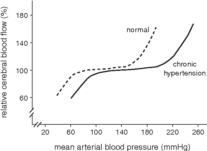 Effect of chronic hypertension on cerebral blood flow is associated with a  rightward