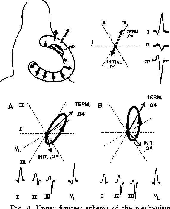 Figure 4 From Left Axis Deviation An Electrocardiographic