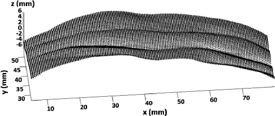 Figure 1 for Simulation of Skin Stretching around the Forehead Wrinkles in Rhytidectomy