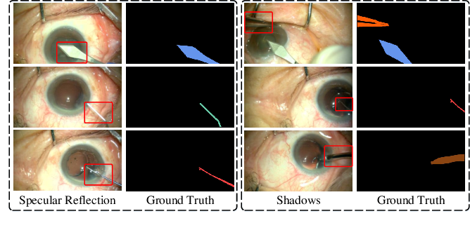 Figure 1 for Attention-Guided Lightweight Network for Real-Time Segmentation of Robotic Surgical Instruments