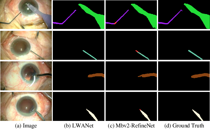 Figure 3 for Attention-Guided Lightweight Network for Real-Time Segmentation of Robotic Surgical Instruments