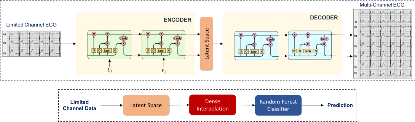 Figure 1 for A Generative Modeling Approach to Limited Channel ECG Classification