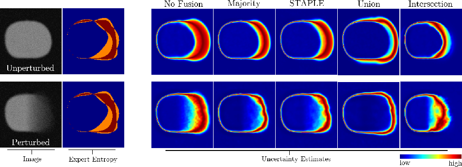 Figure 3 for On the Effect of Inter-observer Variability for a Reliable Estimation of Uncertainty of Medical Image Segmentation