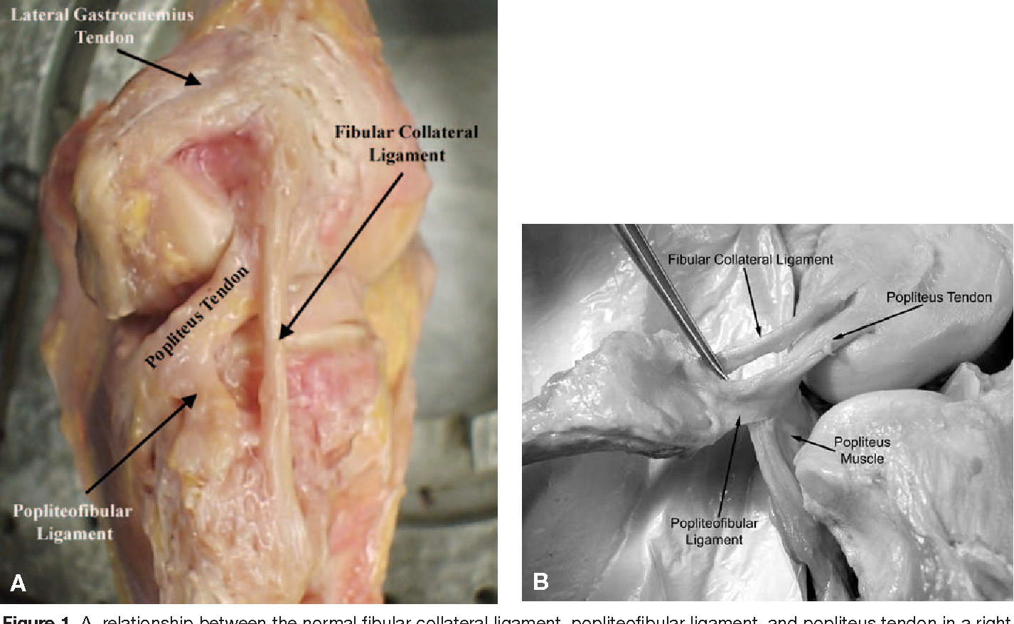 Mechanical Properties Of The Posterolateral Structures Of The Knee