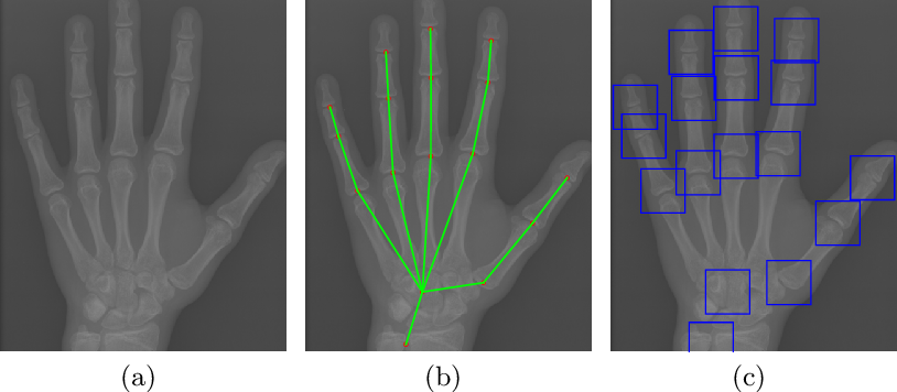 Figure 1 for Improve bone age assessment by learning from anatomical local regions