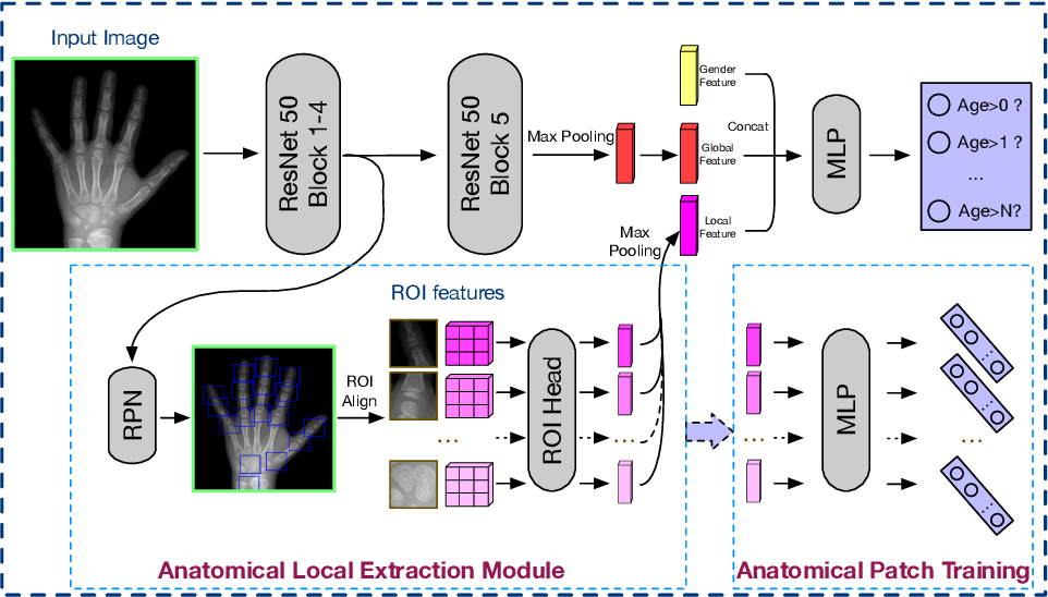 Figure 3 for Improve bone age assessment by learning from anatomical local regions