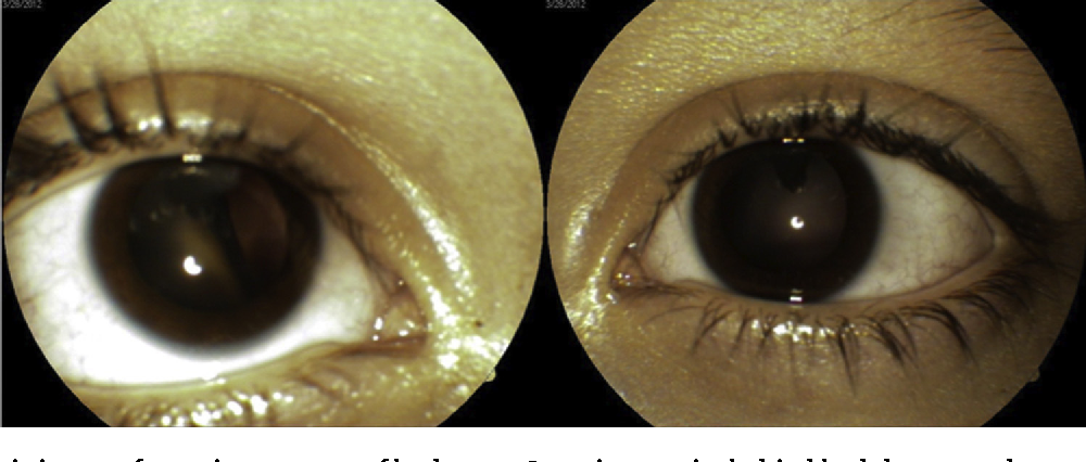 Figure 1 From Bilateral Persistent Hyaloid Artery A Case Report