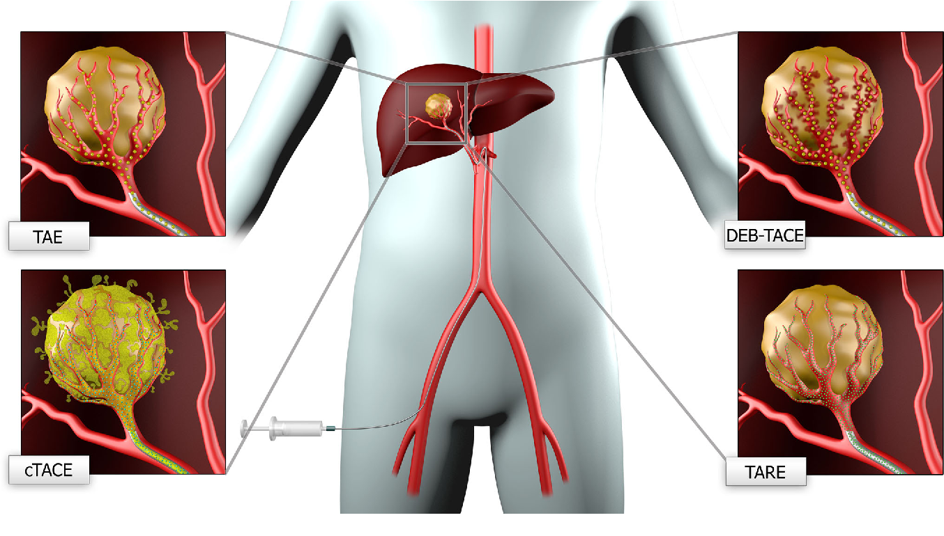 Figure 1 from New concepts in embolotherapy of HCC. - Semantic Scholar