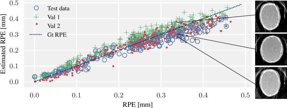 Figure 1 for Image Quality Assessment for Rigid Motion Compensation