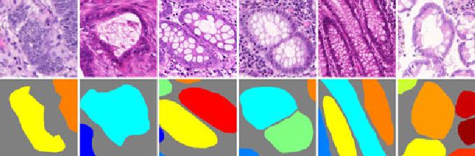 Figure 1 for Gland Instance Segmentation Using Deep Multichannel Neural Networks
