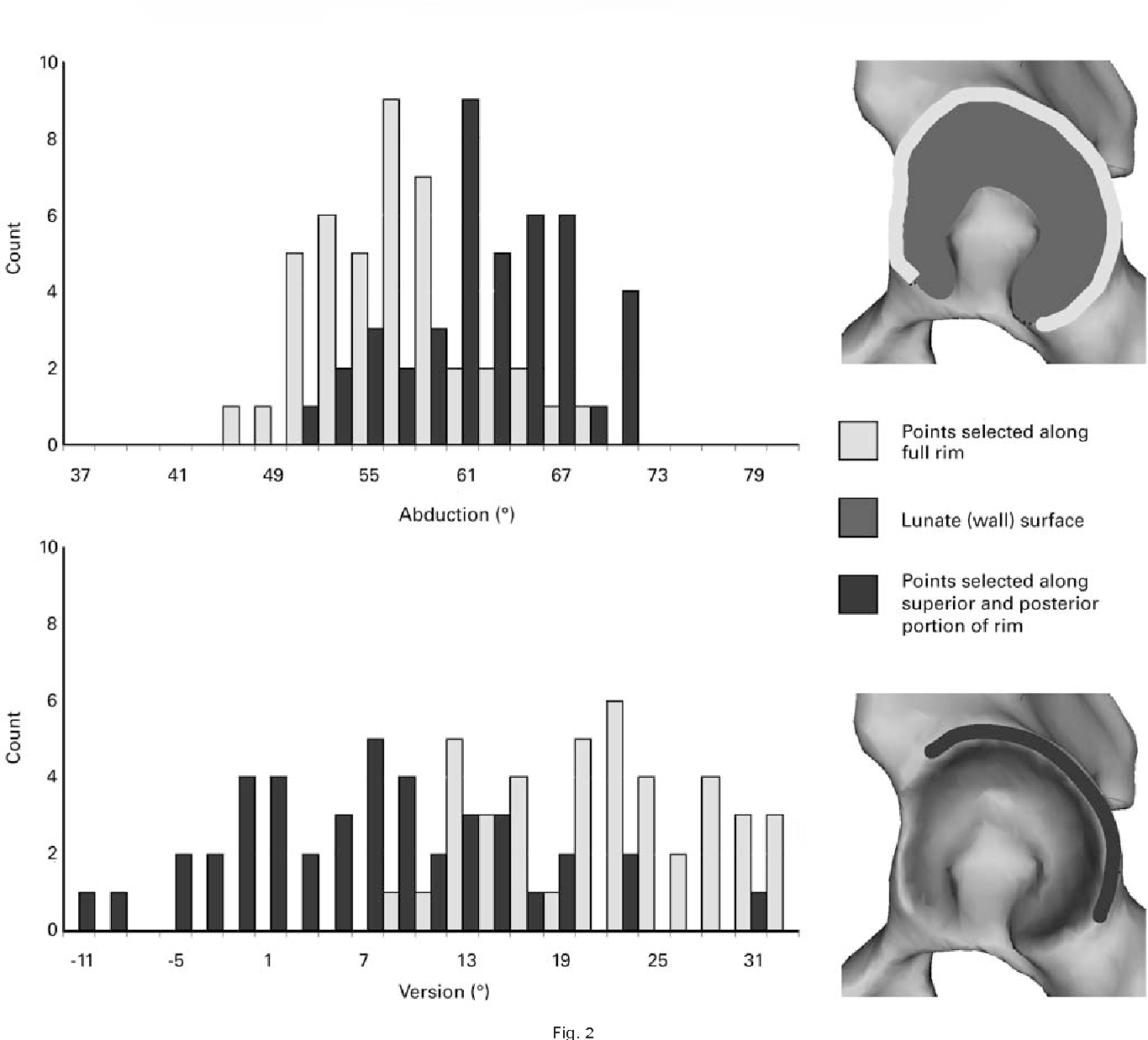 Figure 2 From Variations In Acetabular Anatomy With Reference To