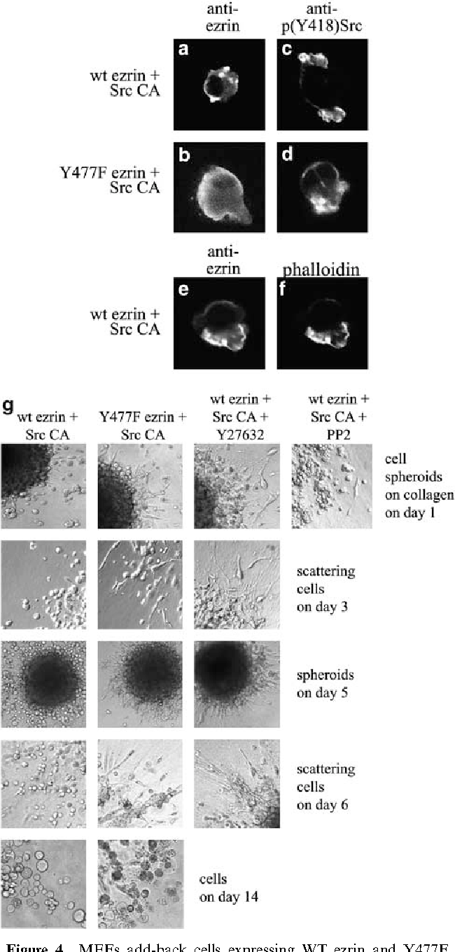 Figure 4 MEFs add-back cells expressing WT ezrin and Y477F mutant demonstrate phenotypic differences in three-dimensional matrices. (a, b) Cells grown in Matrigel were stained for ezrin and analyzed by confocal microscopy. The cells containing WT ezrin and growing inside three-dimensional matrix display locally concentrated ezrin, whereas the Y477F mutant ezrin is diffusely distributed. (c, d) Active Src was detected by anti-(pY418)Src. Active Src is concentrated in submembraneous clusters both in cells expressing WT and in Y477F mutant ezrin. In c, two adjacent cells are seen. (e, f) Double staining of ezrin (e) and F-actin (f) with phalloidin shows colocalization of the proteins. (g) Scattering WT and Y477F ezrin-expressing cells display different morphology in collagen matrix. The cells were seeded on a collagen matrix as spheroid. The scattering of the cells inside collagen was detected on day 1, 3, 5, 6 and 14. The WT cells have rounded, amoeboid morphology, whereas the presence of Y477F ezrin induces elongated cell morphology. Rho kinase inhibitor Y-27632 to WT ezrin expressing cells alters cell morphology from ameboid to elongated. Addition of PP2, a Src family selective inhibitor, prevents the formation of a compact spheroid and the cells cannot survive on collagen.