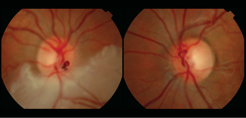 Figure 2 From Branch Retinal Artery Occlusion Secondary To