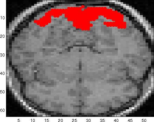 FMRI Activation Detection Using A Variant Of Akaike Information Criterion
