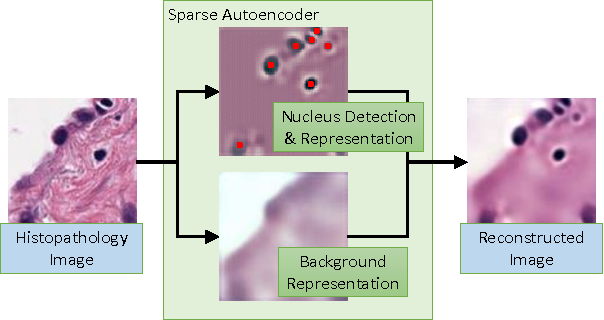 Figure 1 for Sparse Autoencoder for Unsupervised Nucleus Detection and Representation in Histopathology Images