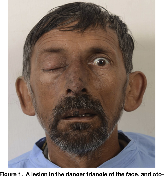 Figure 1 from Danger Triangle of Face and Septic Cavernous Sinus