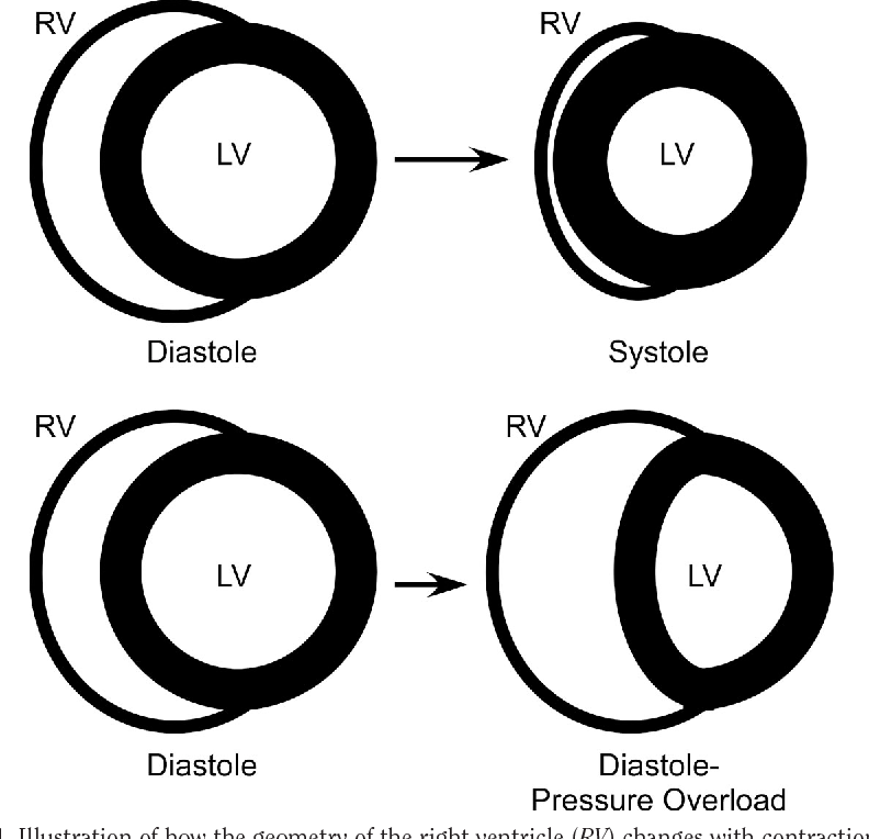 Figure 1 From Pathophysiology Of Right Ventricular Failure