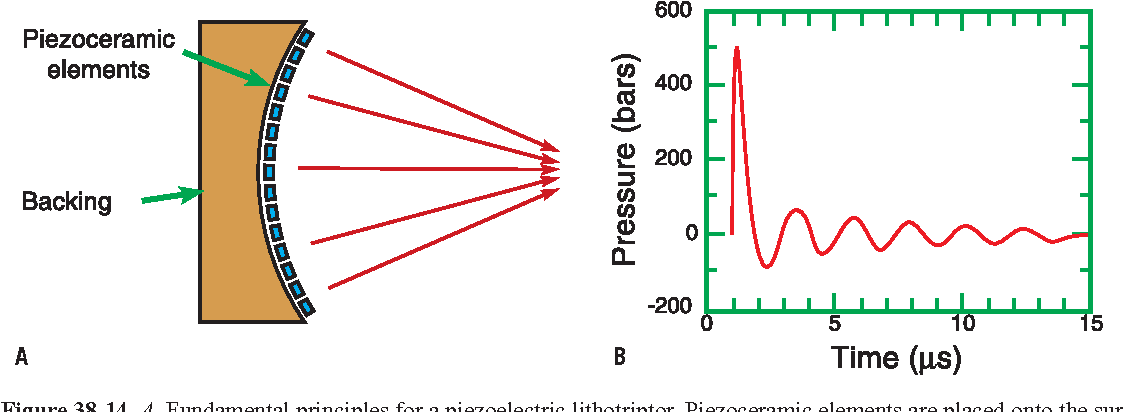 Figure 38-14 from Physics of Shock-Wave Lithotripsy - Semantic Scholar