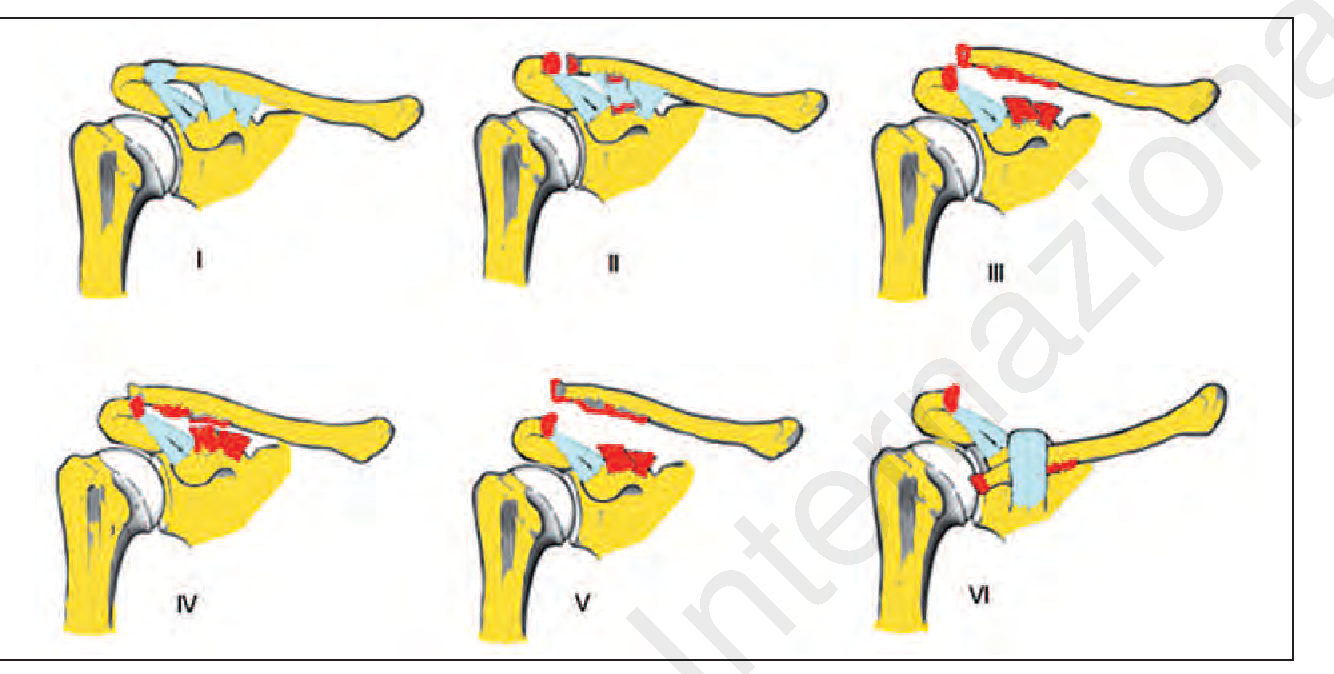Acromioclavicular joint instability: anatomy, biomechanics and ...