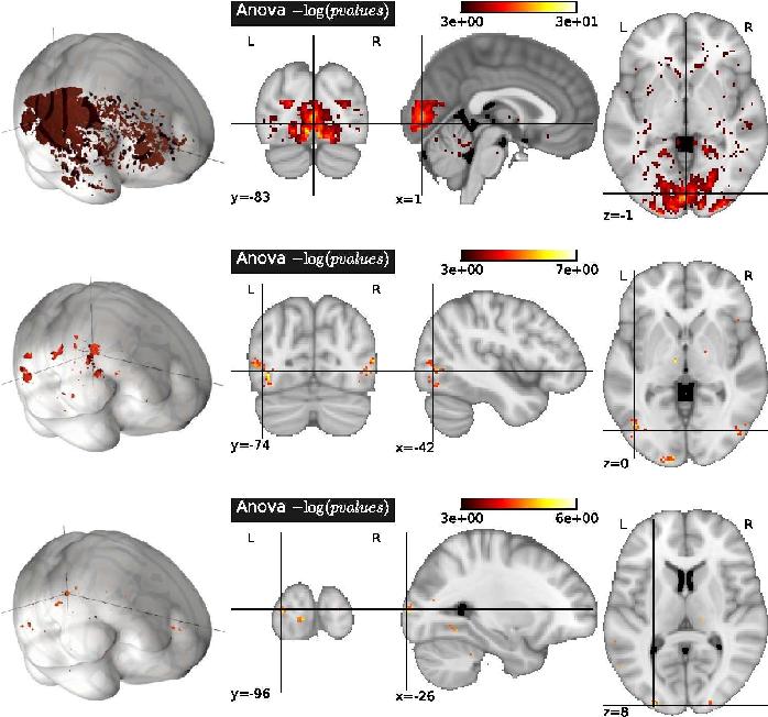 Figure 2 for Total variation regularization for fMRI-based prediction of behaviour