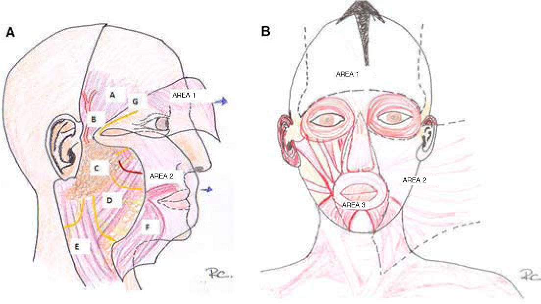 Figure 2 from [Surgical planes of the head and neck]. - Semantic Scholar