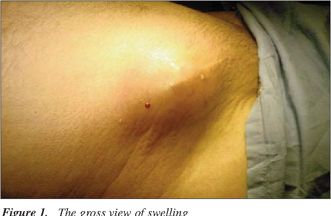 Figure 3 from A very late-onset deep infection after