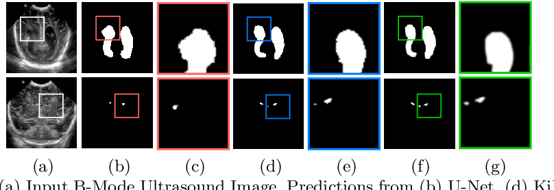 Figure 1 for KiU-Net: Towards Accurate Segmentation of Biomedical Images using Over-complete Representations