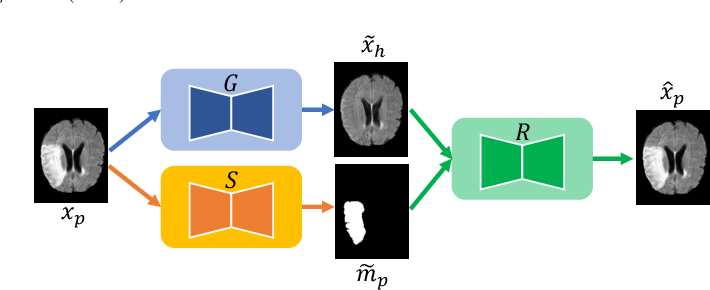 Figure 3 for Pseudo-healthy synthesis with pathology disentanglement and adversarial learning