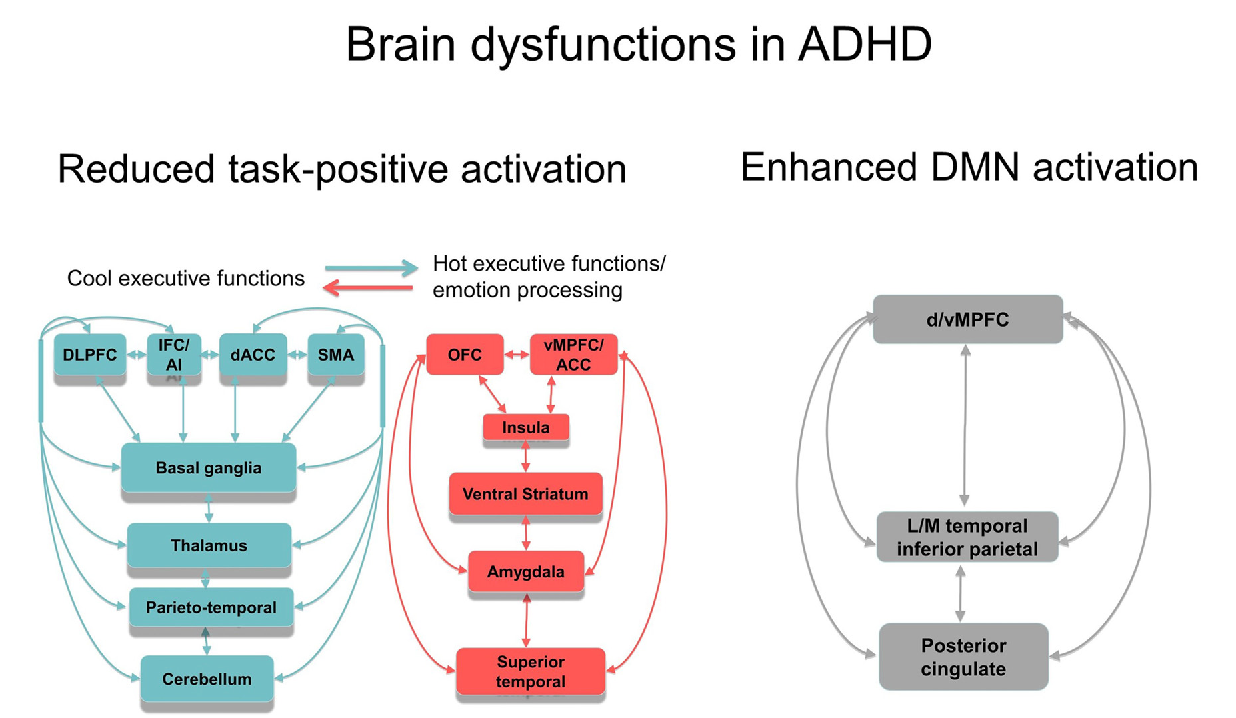 figure 2   schematic representation of the most consistent brain function  abnormality findings in adhd