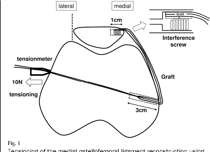 Longitudinal Change Of Medial And Lateral Patellar Stiffness After