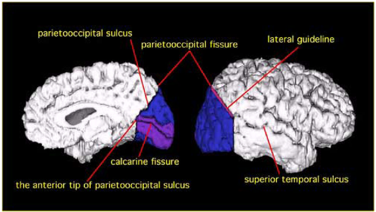 Occipital Lobe Gray Matter Volume in Male Patients with Chronic ...