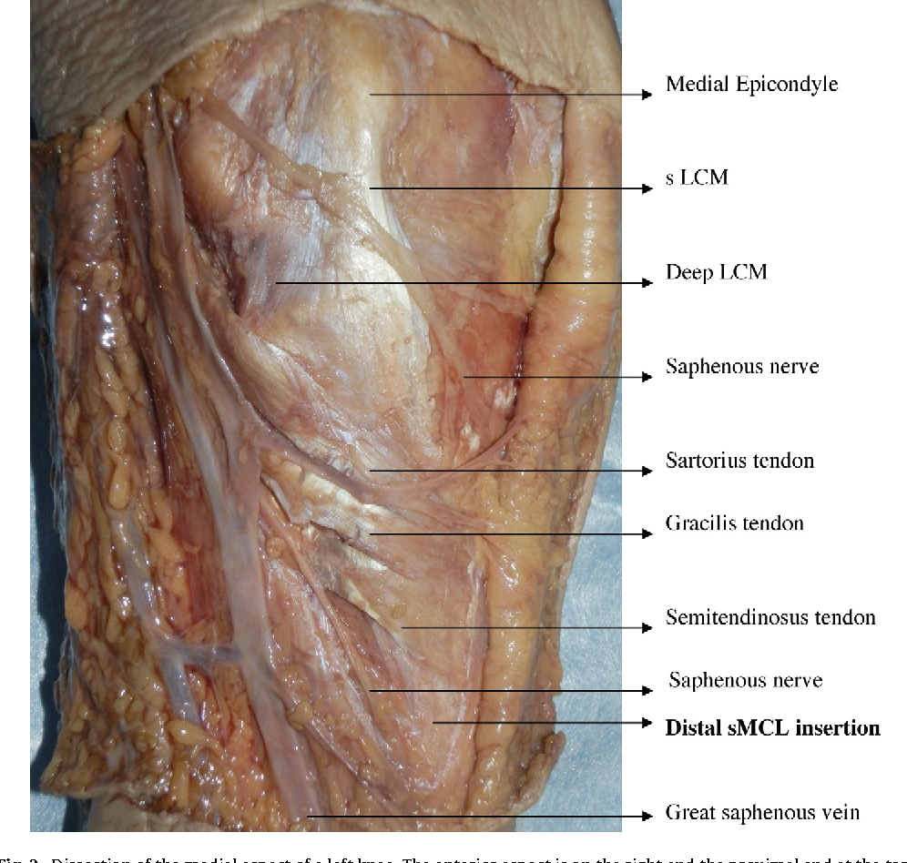 pening the medial tibiofemoral compartment by pie-crusting the ...