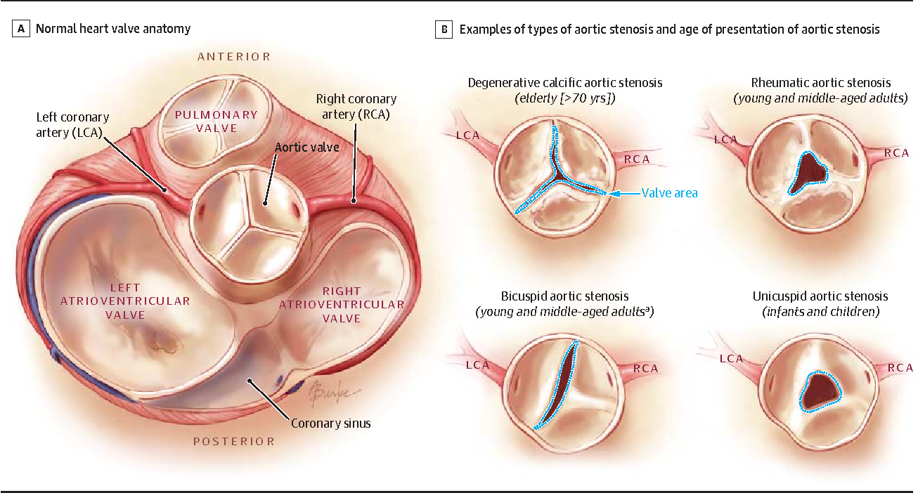 Asymptomatic aortic stenosis in the elderly: a clinical review ...