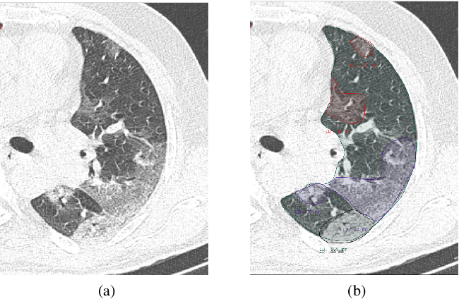 Figure 1 for Segmentation of Pulmonary Opacification in Chest CT Scans of COVID-19 Patients