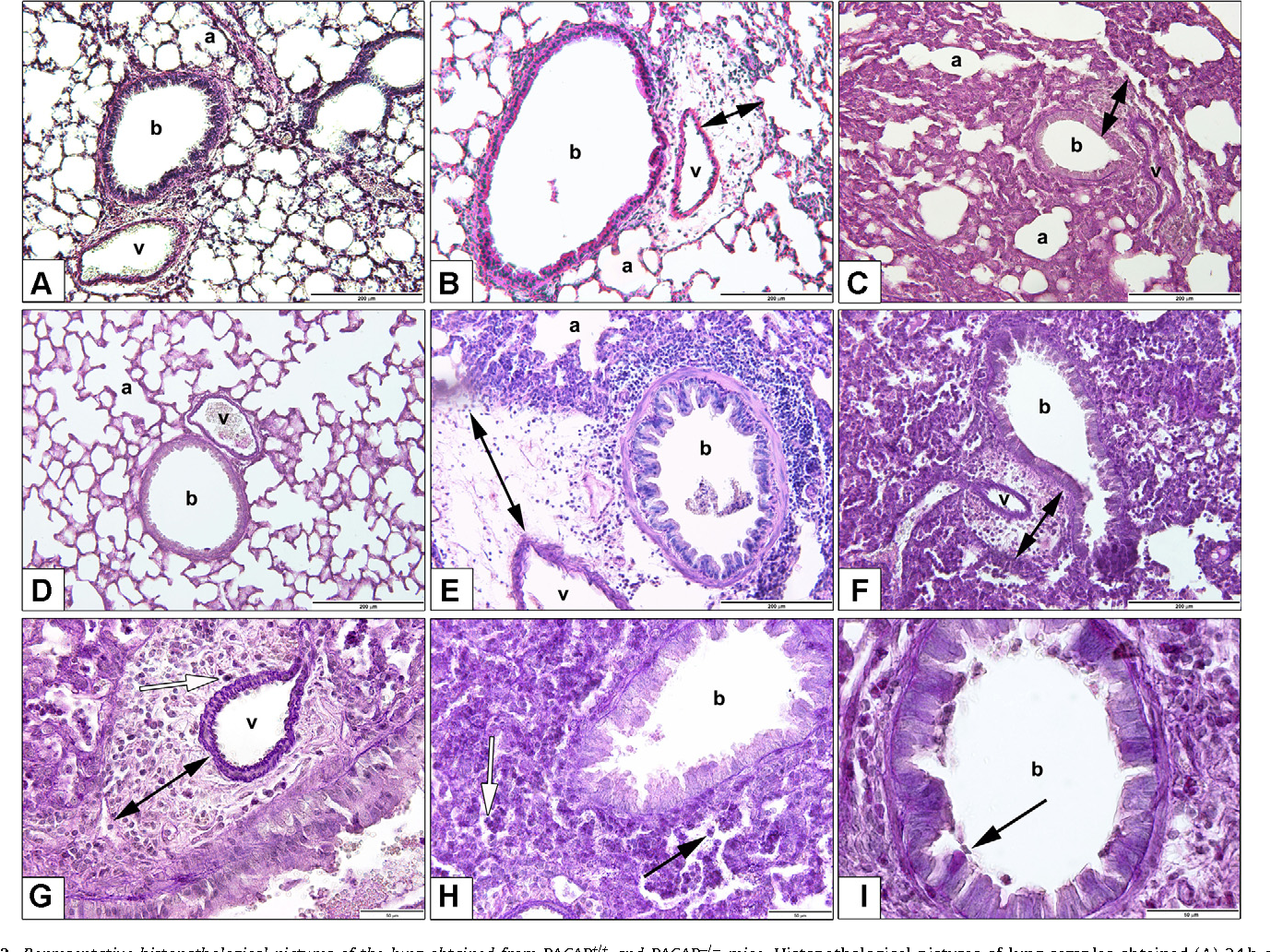 Fig. 2. Representative histopathological pictures of the lung obtained from PACAP+/+ and PACAP−/− mice. Histopathological pictures of lung samples obtained (A) 24 h after intranasal saline treatment (non-inflamed control); (B) 6 h following LPS administration; and (C) 24 h after LPS-treatment of PACAP+/+ mice. In comparison, the lower panels show the respective pictures of PACAP−/− mouse lung samples: (D) saline-treatment; (E) 6 h after LPS-treatment; (F) 24 h after LPS-administration. Double headed arrows in panels B, C, E and F indicate the perivascular edema formation. Panels G–H represent higher magnifications of the representative histopathological alterations: perivascular e a, wh w ow). S m in pa
