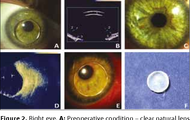 ea8e69016f5a Bilateral spontaneous crystalline lens dislocation to the anterior ...