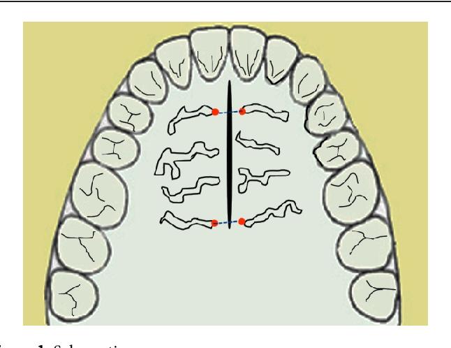 figure 1: schematic rugae