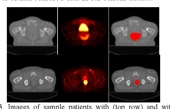 Figure 4 for Deep Convolutional Neural Networks for Imaging Data Based Survival Analysis of Rectal Cancer